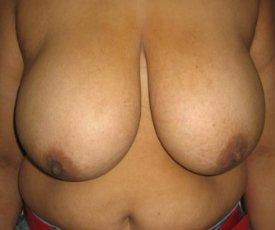 Manhattan Breast Reduction before 3